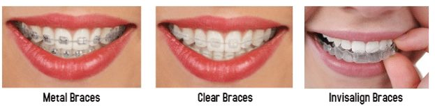 Types of braces for adults