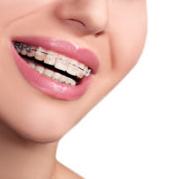 Clear Braces Raleigh Orthodontics